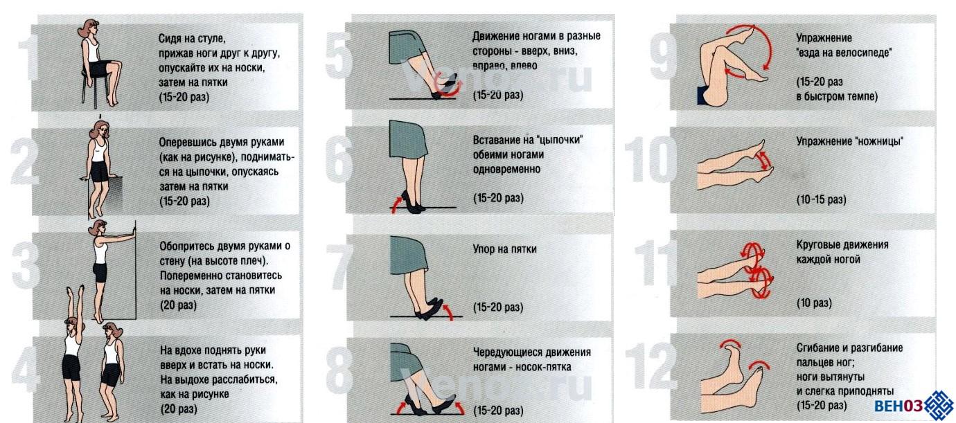 Упражнения от варикоза в картинках